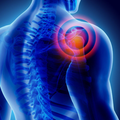 Settlement agreed for shoulder injury sustained during physiotherapy treatment